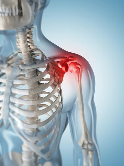 Frozen shoulder, an inflammatory condition which will affect about 2-5% of people at some point in life